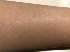 マチコ 銀座カラー 腕
